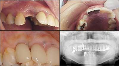 インプラント症例集 1歯欠損 症例