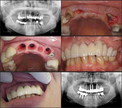 インプラント症例集 多数歯欠損 症例