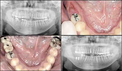 インプラント症例集 2歯欠損 症例